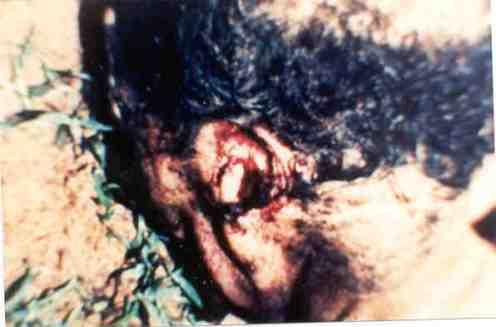 Mutilado de Brasil