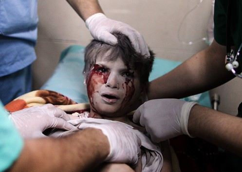 A Palestinian boy, who medics said was wounded by Israeli shelling, receives treatment at al-Shifa hospital